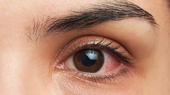 خستگی چشم یکی از دلایل ایجاد سیاهی دور چشم
