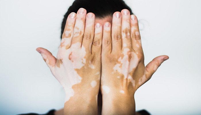 موجب بروز لکه های سفید بر روی پوست می شود.