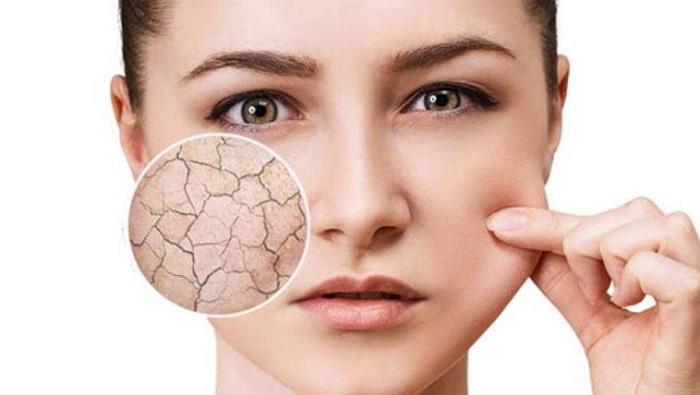 تفاوت پوست خشک و پوست کم آب