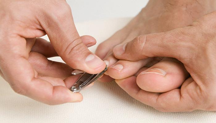 برای پیشگیری از ابتلا به قارچ ناخن ناخن های خود را کوتاه کنید