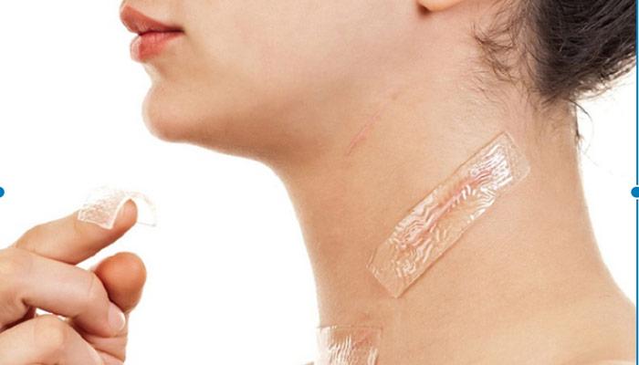 ژل سیلیکون موثر برای از بین بردن جای زخم.