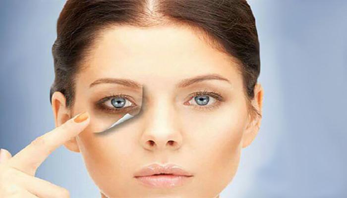 درمان حلقه های تیره زیر چشم با استفاده از کربن تراپی